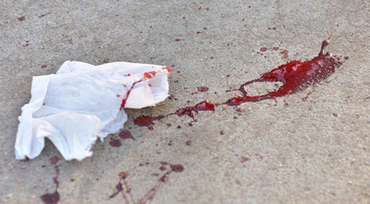 Follia a Marano per un parcheggio, 21enne tenta di uccidere due persone