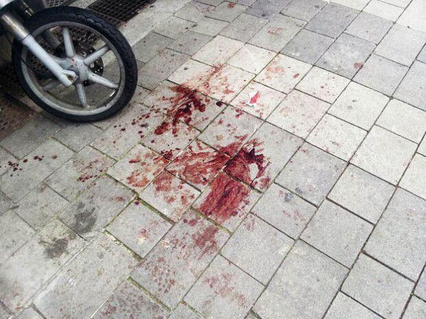 Napoli violenta, scoppia la rissa. Due fratelli feriti a coltellate