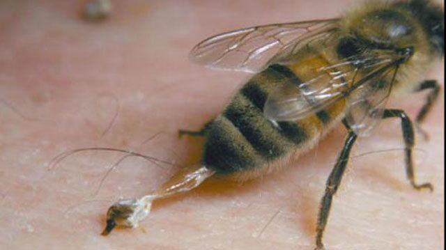 Punta da un'ape mentre fa i servizi in casa, donna in choc anafilattico