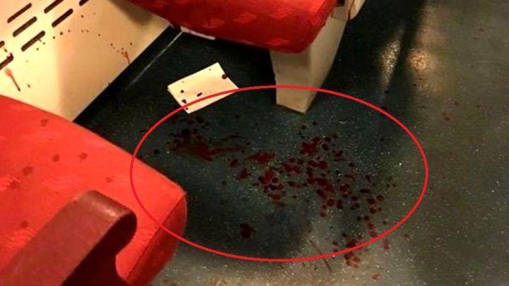 Napoli, urla contro passeggeri del treno e ne accoltella uno