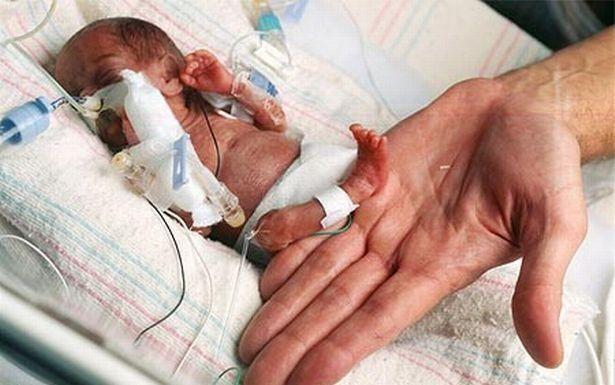 Emilia, la bimba più piccola del mondo. Ecco la foto