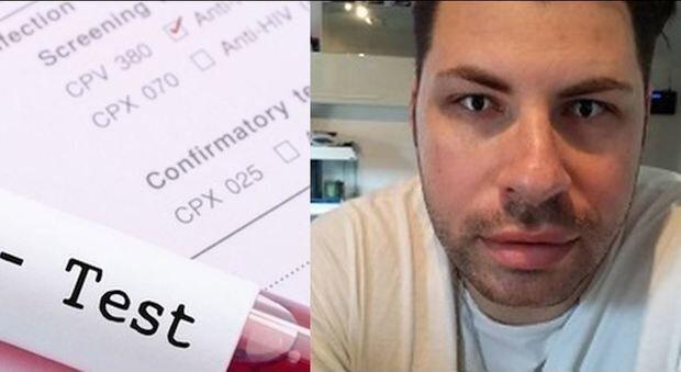 HIV, Valentino Talluto: ecco chi è l'untore dell'AIDS. FOTO FACEBOOK