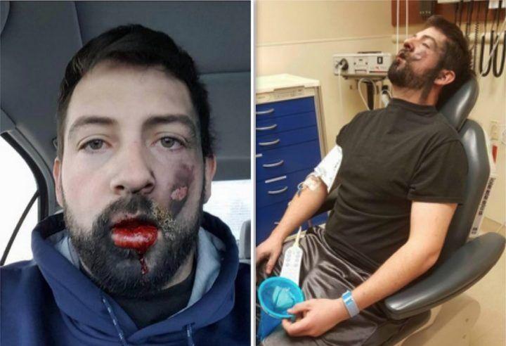 Sigaretta elettronica gli esplode in faccia, giovane posta le foto su Facebook