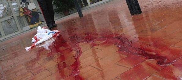 Rione Berlingieri, litigio finisce nel sangue: due feriti gravi