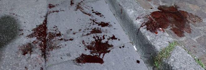 Napoli, accoltellato per rapina davanti al San Paolo: denunciati 3 minori