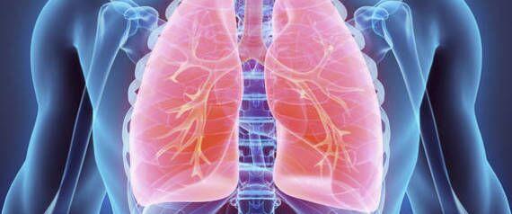 Lotta ai tumori polmonari, in Campania arriva un nuovo farmaco