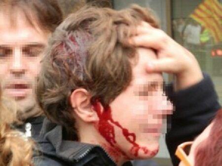 Ancona, dramma a una festa: per gioco 15enne finisce con un coltello in fronte
