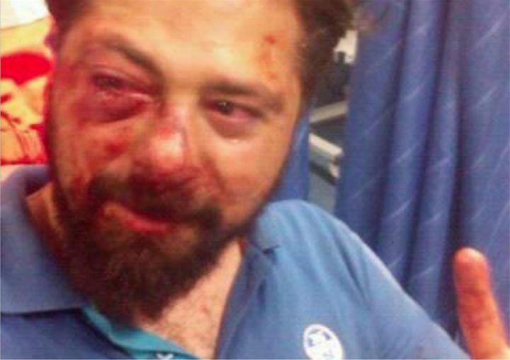 Napoli, aggressione choc: pestato da tre rapinatori. La foto fa il giro del web