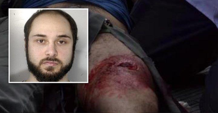 Gambizzato a Marano, la vittima è un uomo vicino al gruppo di Mariano Riccio