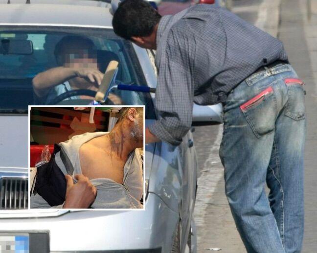 """Napoli, difende coppia da lavavetri e viene aggredito: """"Poteva morire dissanguato"""""""