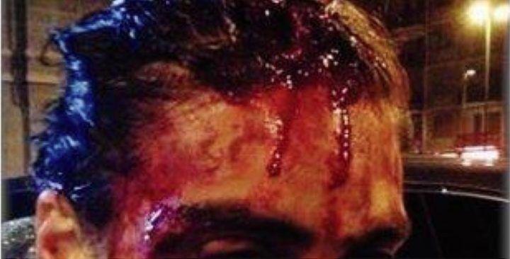 Tenta di fermare i rapinatori nel suo giardino e viene aggredito a sangue