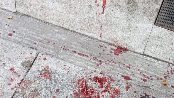 Choc ad Aversa, si taglia la gola in strada davanti a tutti: è grave