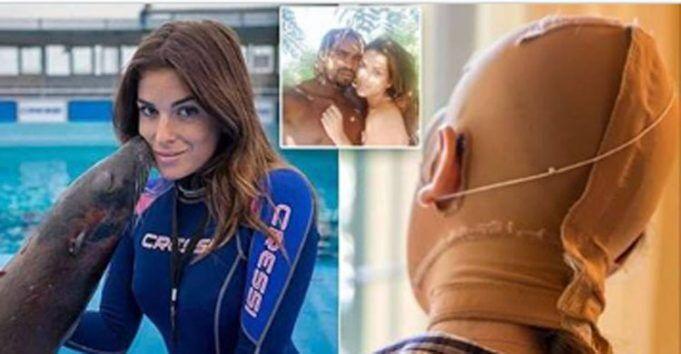 Sfregiata con l'acido: Jessica Notaro prima e dopo