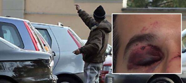 Caserta, uomo pestato a sangue: arrestato parcheggiatore abusivo