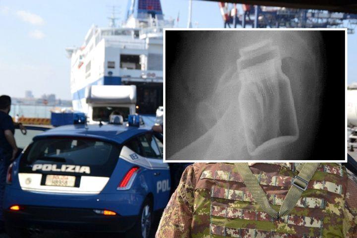 Napoli, assurdo cosa nascondeva nel retto: arrestato 30enne