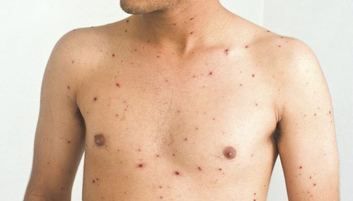 Quarta vittima di morbillo, morto 42enne: si teme nuovo boom di contagi
