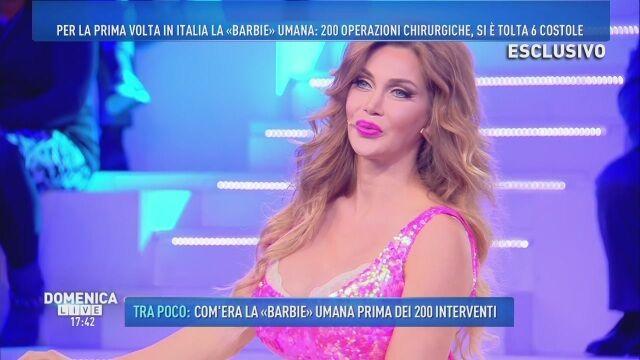 Pixee Fox: la trasformazione della Barbie umana dopo 200 interventi di chirurgia