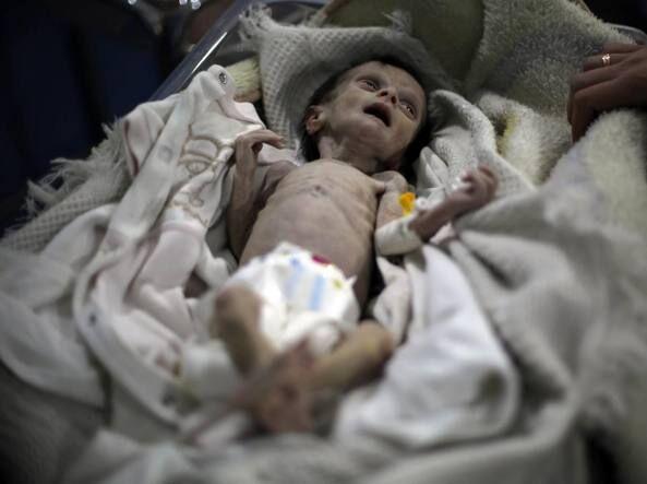 Il dramma della guerra: la piccola Sahar muore di fame in clinica