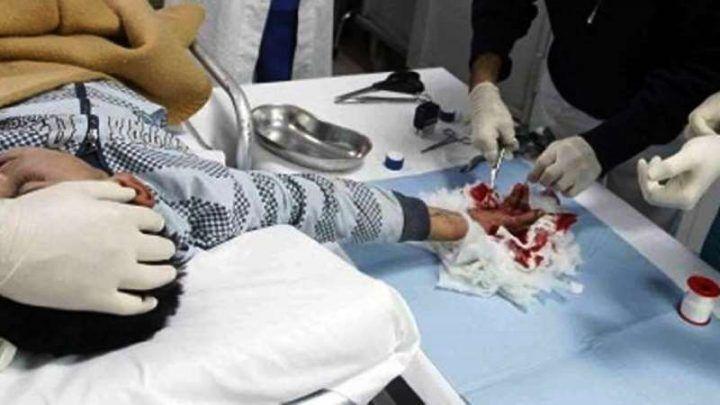Secondigliano, raccoglie petardo inesploso e gli scoppia in mano: grave 14enne