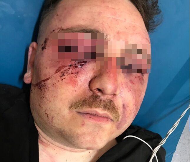 casapesenna torturato sequestrato instagram