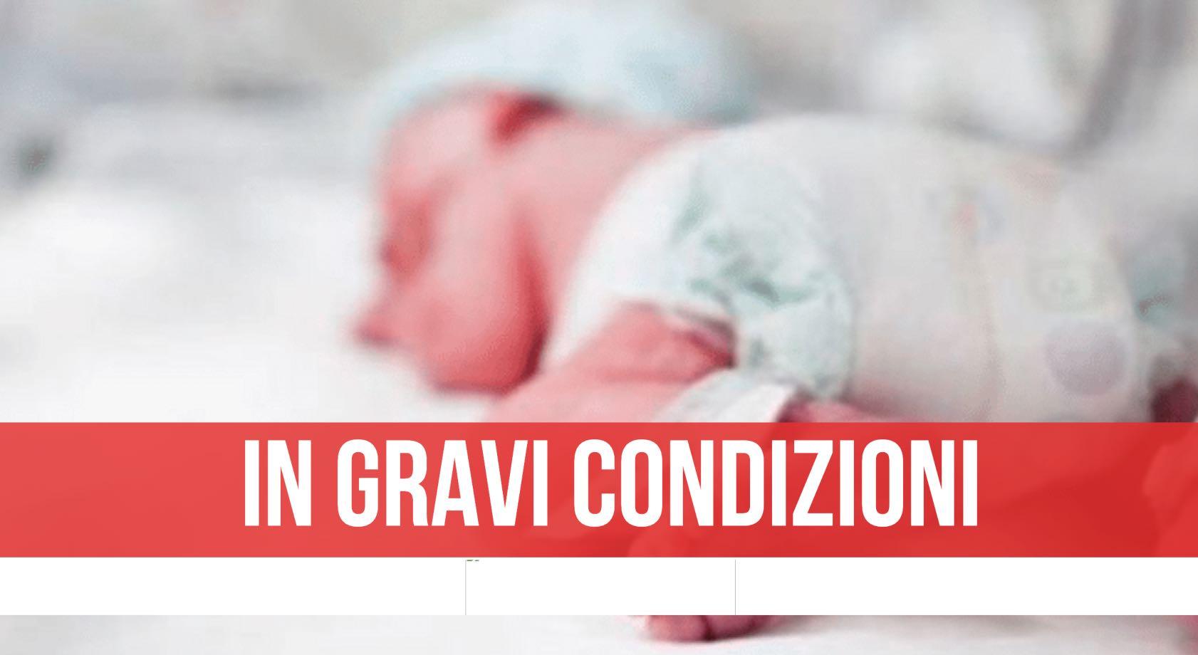 portici neonata ustioni santobono