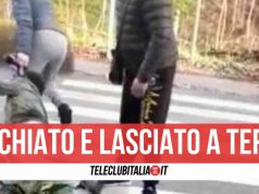 aggressione brusciano picchiato uomo